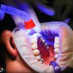 Zła dieta żywienia się to większe niedobory w zębach a także ich brak